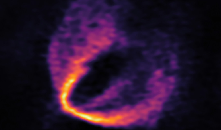 "This image shows part of the ALMA data set at one wavelength and reveals a clear ""kink"" in the material, which indicates unambiguously the presence of one of the planets. Image: ESO, ALMA (ESO/NAOJ/NRAO); Pinte et al."
